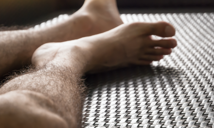 HOT OR NOT: HAIRY LEGS